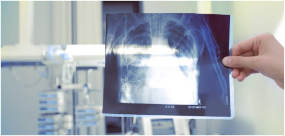澳洲工人因结晶硅粉患上严重尘肺病 或危及生命