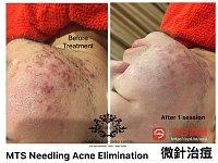 持牌祛痘 修复痘印 皮肤去螨  黑头闭口粉刺 瘦脸轮廓重塑