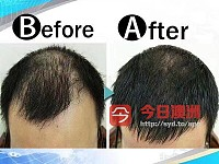 PRP自體血清生髮臉部回春療程
