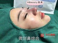 医美微整 隆鼻 祛斑 美牙 瘦脸针 除皱超声刀 热玛吉 皮秒 护肤