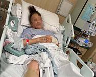 墨市7旬华裔老太遭公交碾压致重伤,女儿哭寻目击者